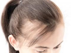 植发对人健康有害吗?日常头发护理要注意什么?