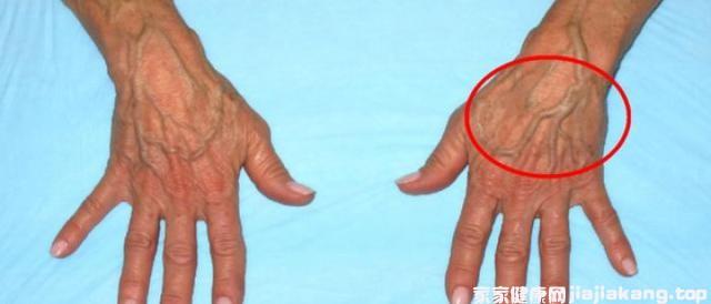 身上青筋凸起要警惕:这是在发出疾病的信号图3