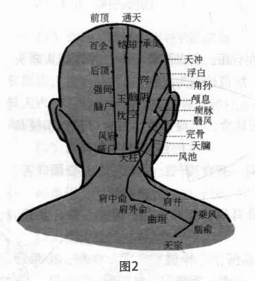 失眠病磁圆梅针疗法