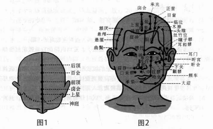 近视磁圆梅针疗法