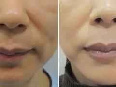 面部微雕:针灸去皱、面部提升(永驻青春)祛除面部所有的皱纹