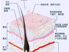 激素脸的症状和分类