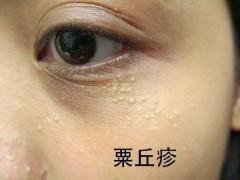为什么你的眼部总爱长脂肪粒?