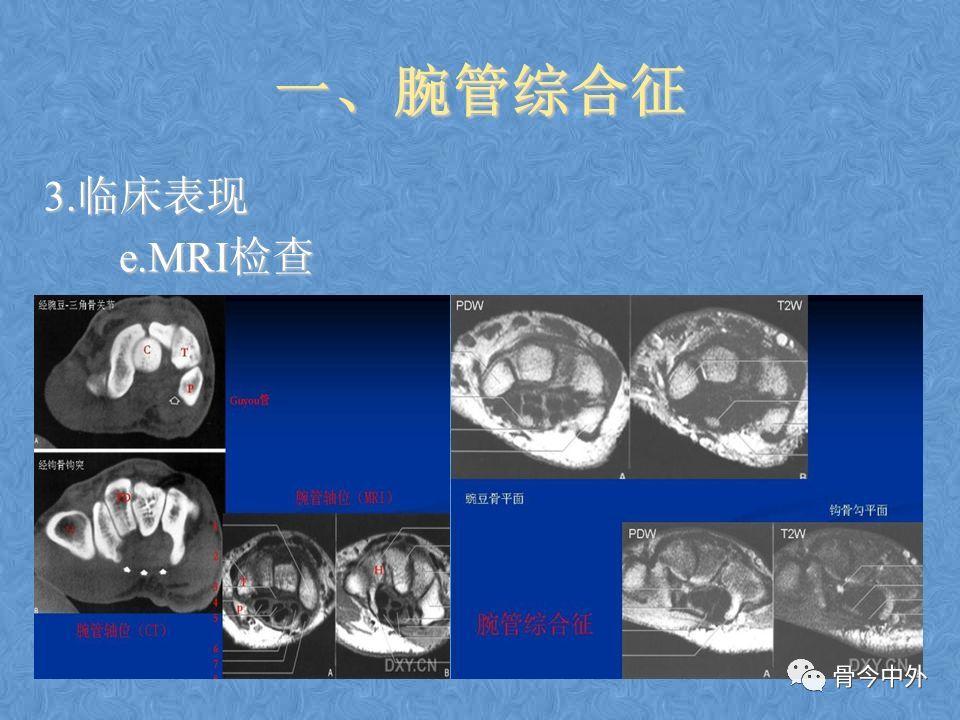 详解8种周围神经卡压综合征!