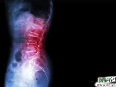 强直性脊柱炎中医之针灸疗法