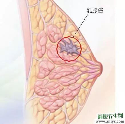 乳房健康的晴雨表 每个女人都应该知道的