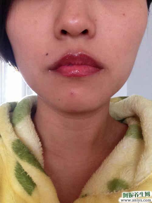 嘴唇发紫是什么原因