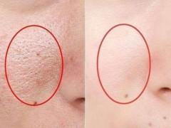 这两种方式可以改善毛孔粗大的问题