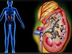 肾结石主要与4种不良饮食有关,男女性朋友都注意了